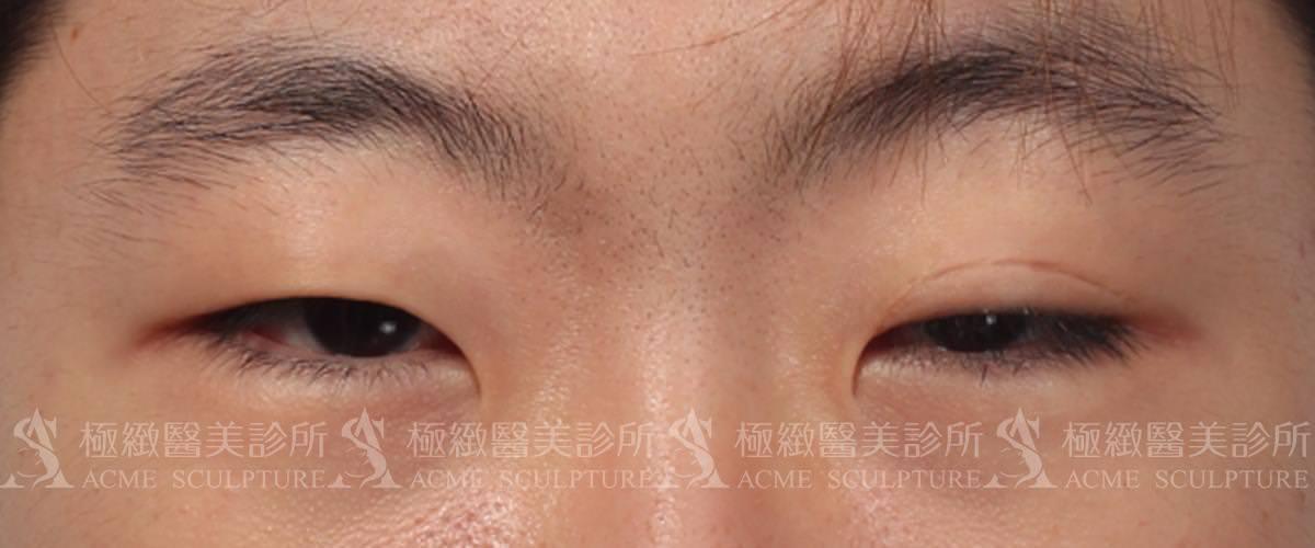 提眼肌 眼瞼無力 縫雙眼皮 割雙眼皮 周杰 周杰醫師.jpg
