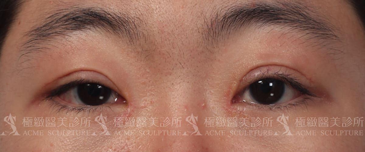 提眼肌 眼瞼無力 縫雙眼皮 割雙眼皮 周杰 周杰醫師 後.jpg